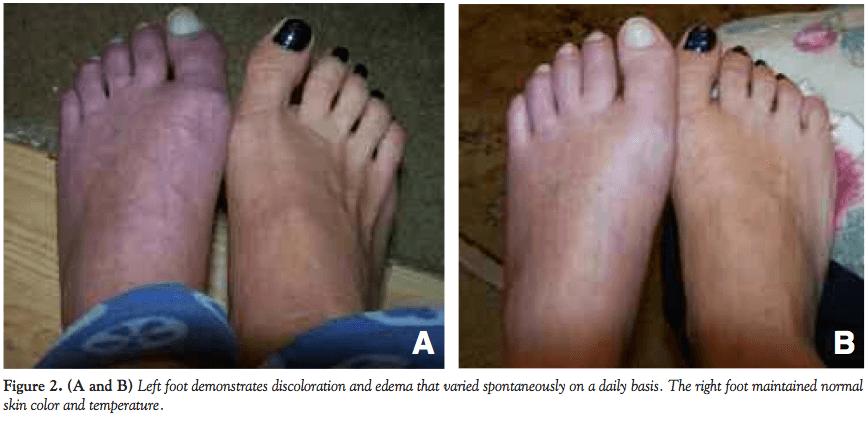 Complex Regional Pain Syndrome Comparison