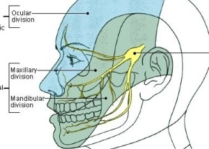 Face Pain