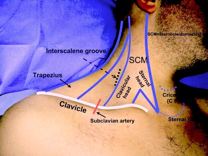 Interscalene Nerve Block Diagram