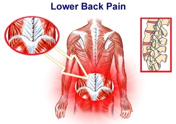 Low Back Pain Diagram