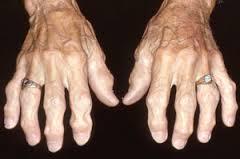 Osteoarthritis2
