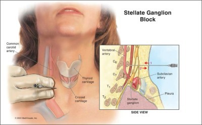 Stellate Ganglion Block Explained