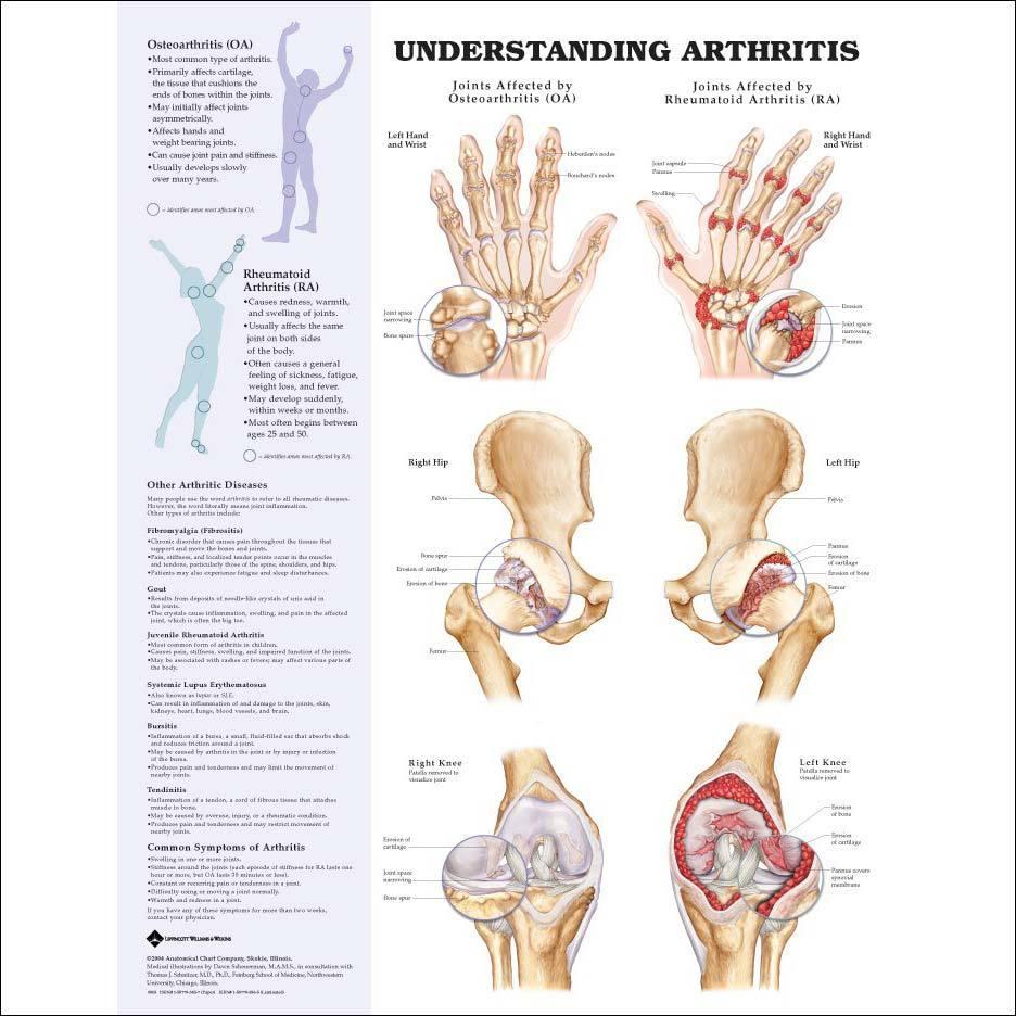 Arthritis Pain Relief Colorado Pain Denver Golden