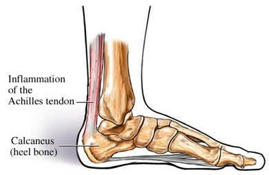 Inflamation Plantar Fasciitis – Achilles Tendonitis