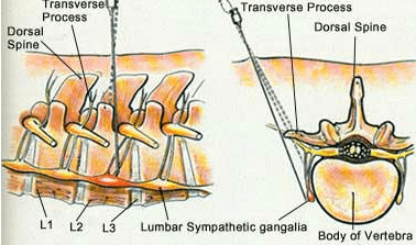 Drawing - Lumbar Sympathetic Block