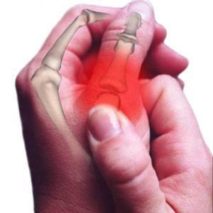 Osteoarthritis Thumb