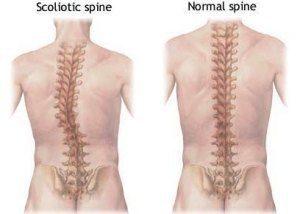 Scoliosis Spine Comparison