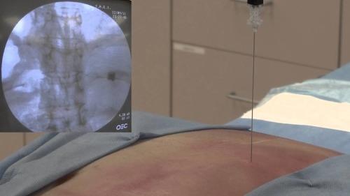 Intercostal Nerve Block Fluoroscopy