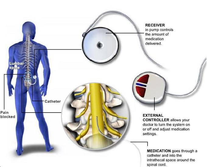 Intrathecal Pump Implant Diagram