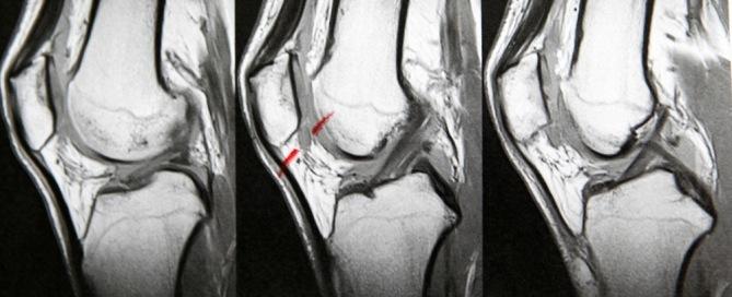 Knee Pain MRI