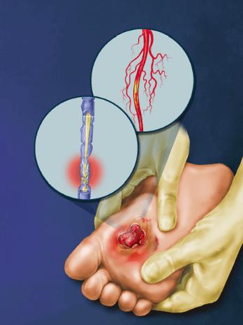 Diabetic Peripheral Neuropathy Diagram