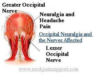 Occipital Neuralgia | Colorado Pain - Denver, Golden