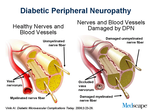 diabetic-peripheral-neuropathy