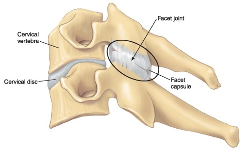 Cervical - Facet Joint
