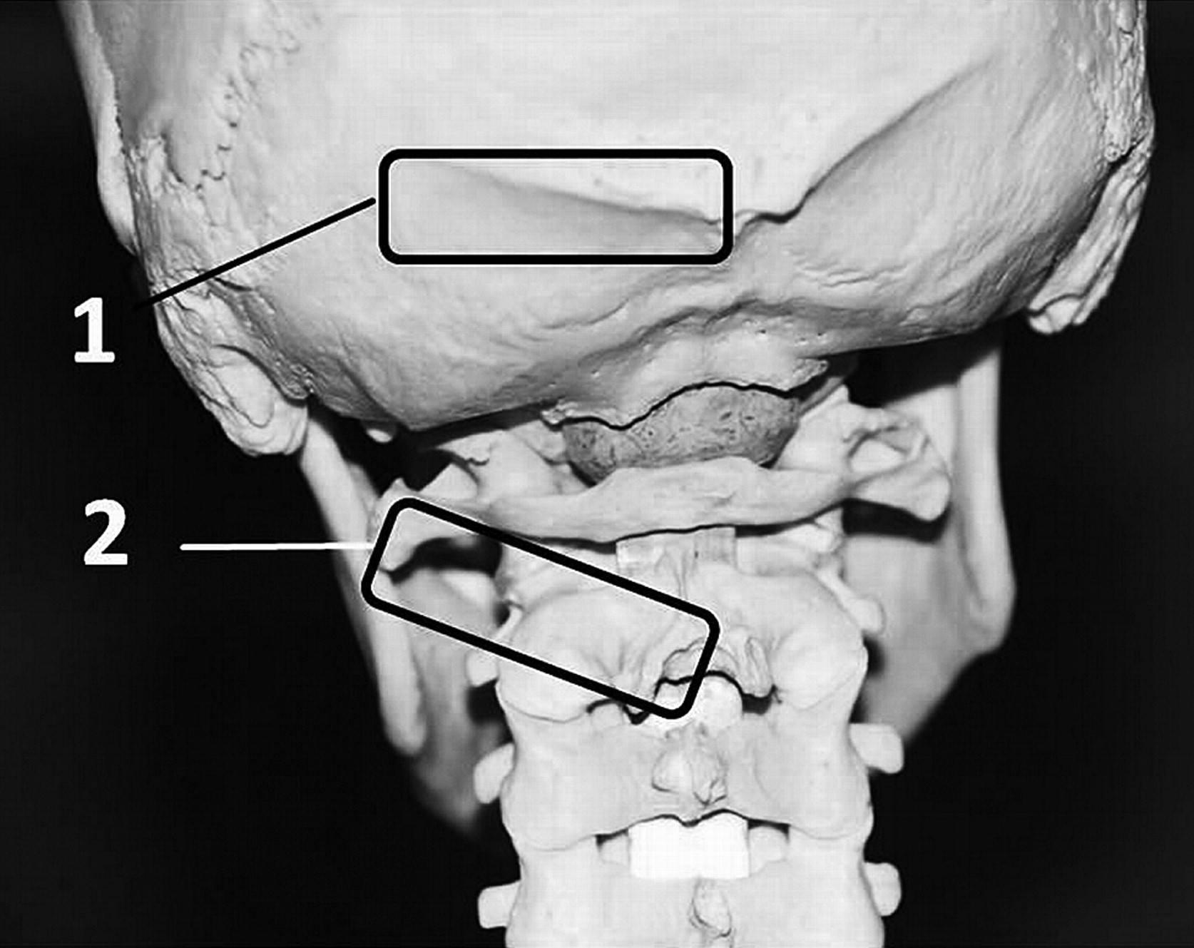 Occipital Nerve Location