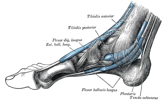 Plantar Fasciitis – Achilles Tendonitis Diagram