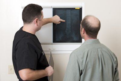 Upper Back Pain MRI