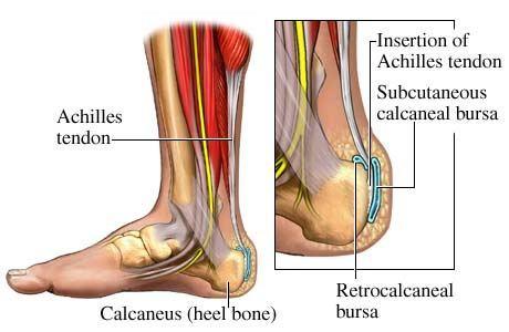 achilles tendonites
