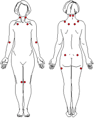 Fibromyalgia Illustration