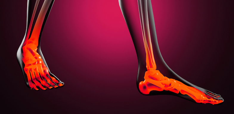 Pain On Top of Foot: Potential Causes and Solutions | ColoradoPain.co